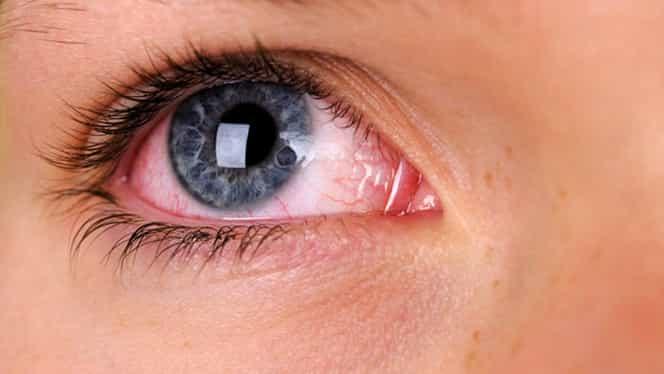 Ochii roșii ar putea fi simptom de coronavirus. Descoperirea cercetătorilor americani