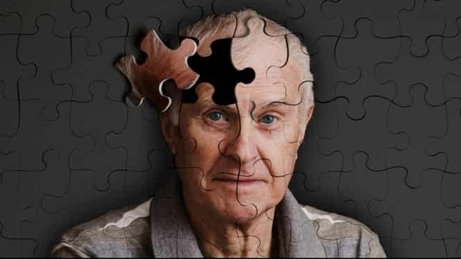 Legătura dintre somn şi Alzheimer. De câte ore de somn ai nevoie ca să nu-ţi pierzi memoria?