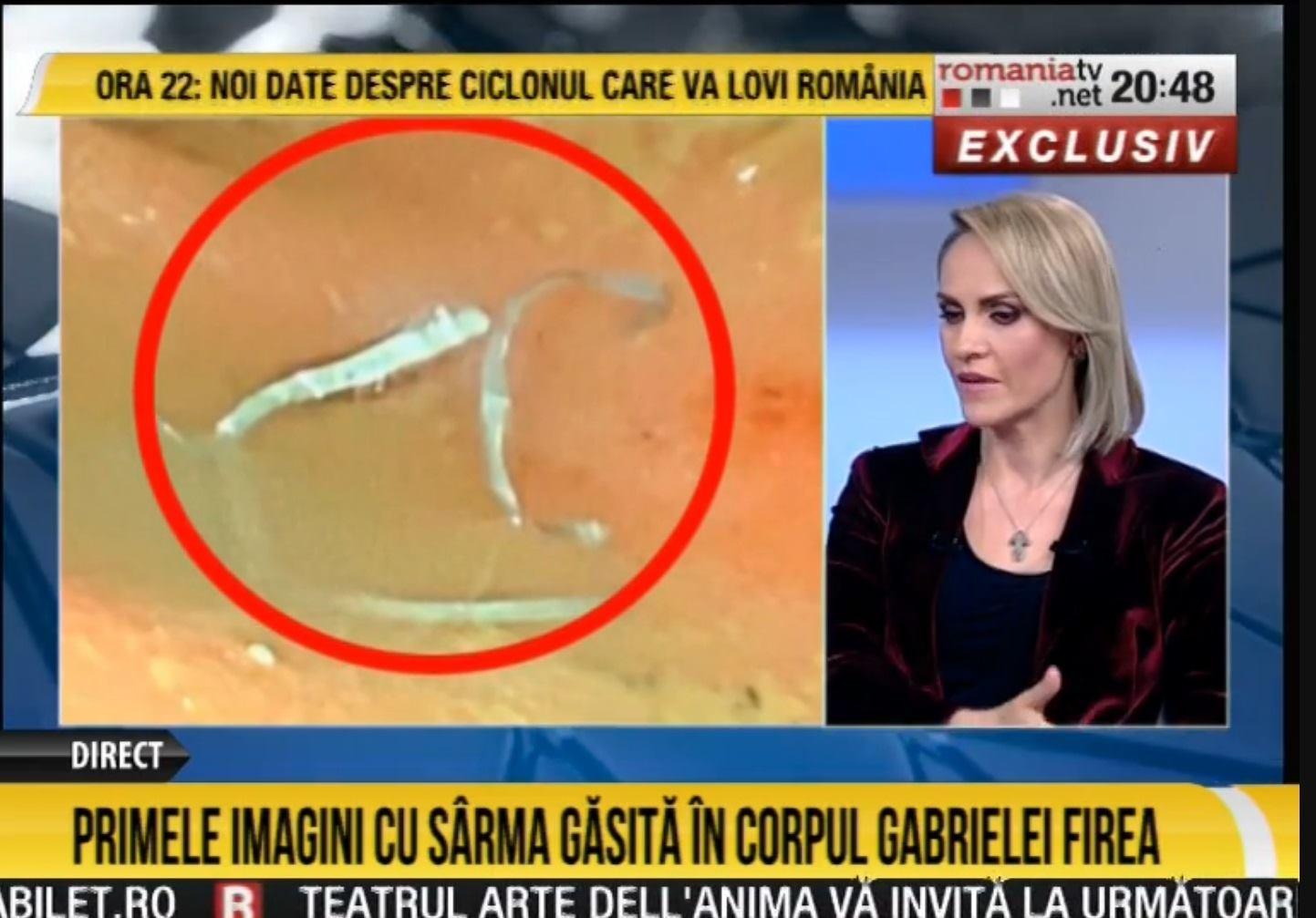 Ce au scos medicii din Gabriela Firea. Primarul a aratat la TV imagini cu sarma din colon