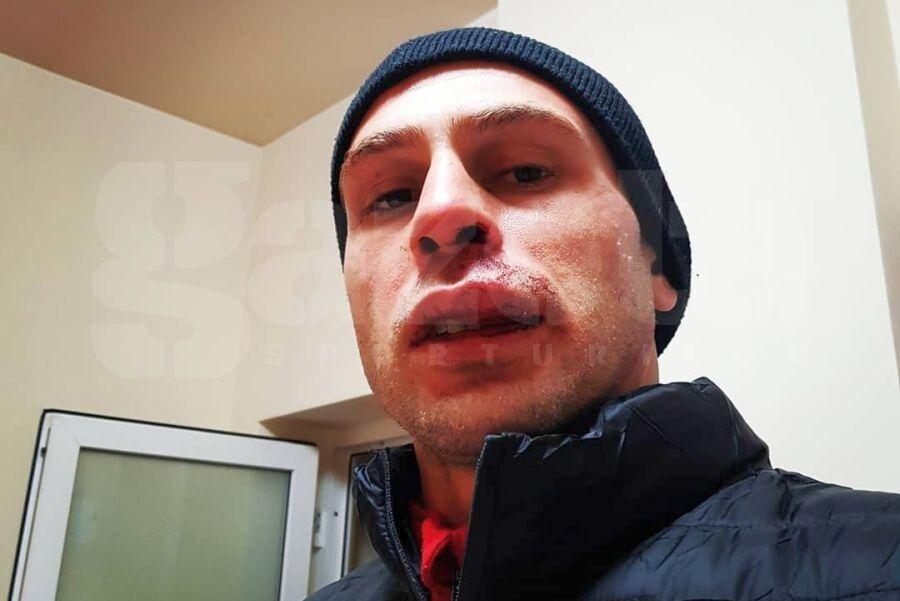 Imagine dură cu Perovic după contactul cu Cristea